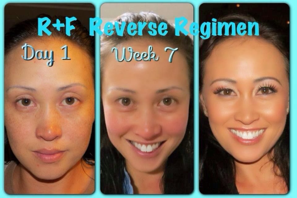 Rodan Fields Before and After