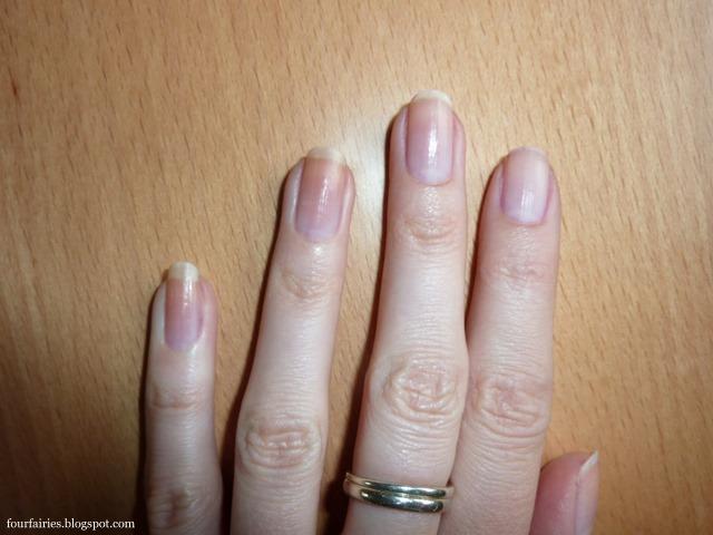 Gribok der Nägel wie geschieht die Ansteckung