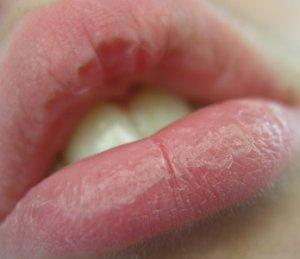 Tips Cara Mengatasi Bibir Pecah-Pecah