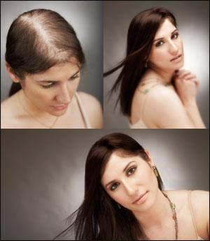 mujeres con problemas de perdida de cabello