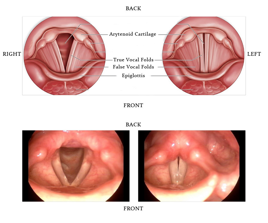 Vocal Cords Posterior Diagram - Online Schematic Diagram •