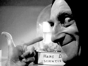 Marty Feldman Young Frankenstein