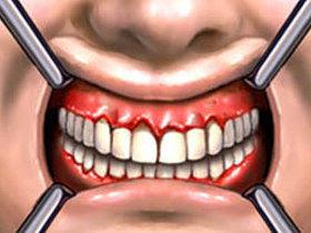 combatir gingivitis