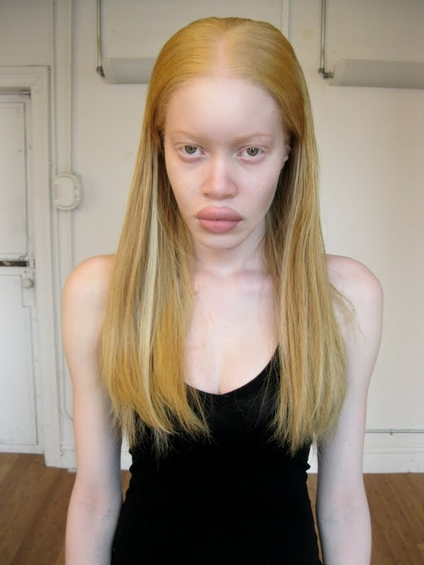 Black Albino Woman Nude - Hot Girls Wallpaper