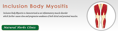 http://www.naturalherbsclinic.com/Inclusion-Body-Myositis.php