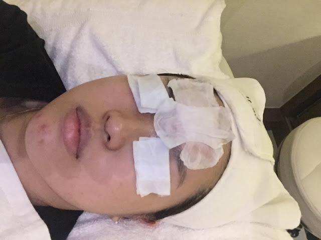Simply Aesthetics Oxycious Facial Treatment Review Lunarrive Singapore Lifestyle Blog