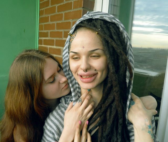 SEXY : Gambar Terkini Gadis Dengan Bibir Terbesar Di Dunia (15 Gambar)