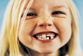 Gigi Anak Rusak , Keropos , Berlubang Apa Penyebabnya ?
