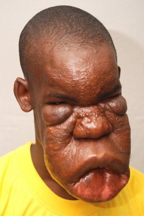 Hombre con horrible enfermedad q le deformó el rostro Enfermedad-horrible-01
