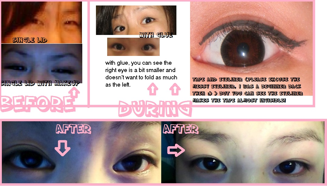 Get Permanent Double Eyelids Naturally