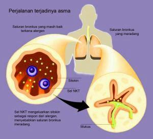Bagaimana Cara Mengobati Penyakit Asma