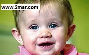تعرض الطفل للضوء الأبيض علاج للصفراء عادة خاطئة 1.jpg