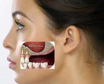 Posisi sinus Penyebab Sakit Gigi yang Harus Kamu Hindari