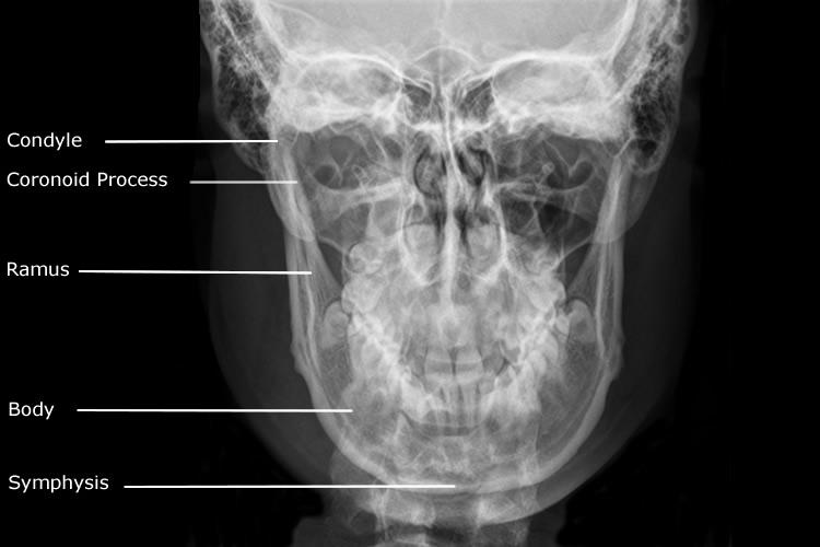 Radiographic Anatomy of Mandible | My Radiology Files