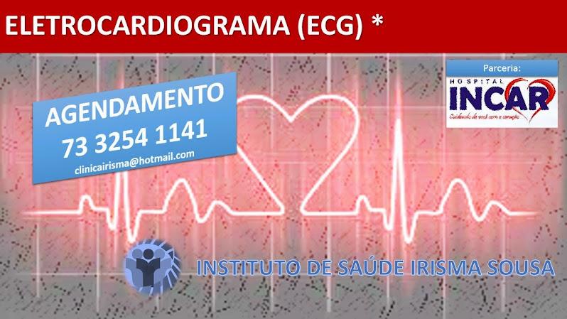 ELETROCARDIOGRAMA (ECG)