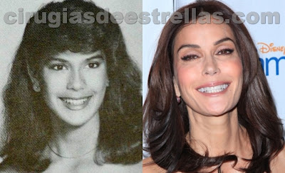 teri hatcher antes y despues