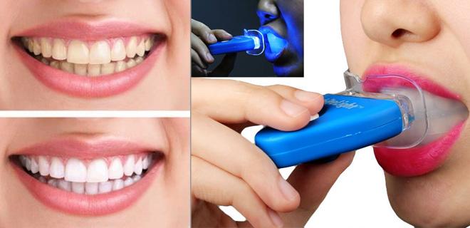 Как в домашних условиях отбелить зубы за один раз в домашних условиях