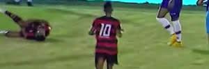 Campinense x Bahia: Veja a grave lesão de Alvinho