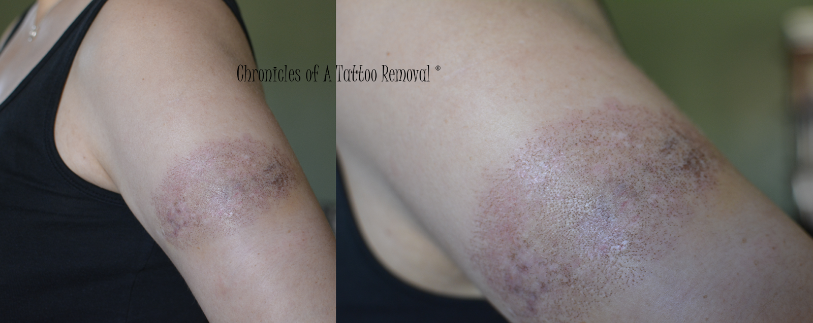 Chronicles of a Tattoo Removal
