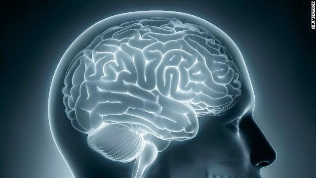 Dementia Brain
