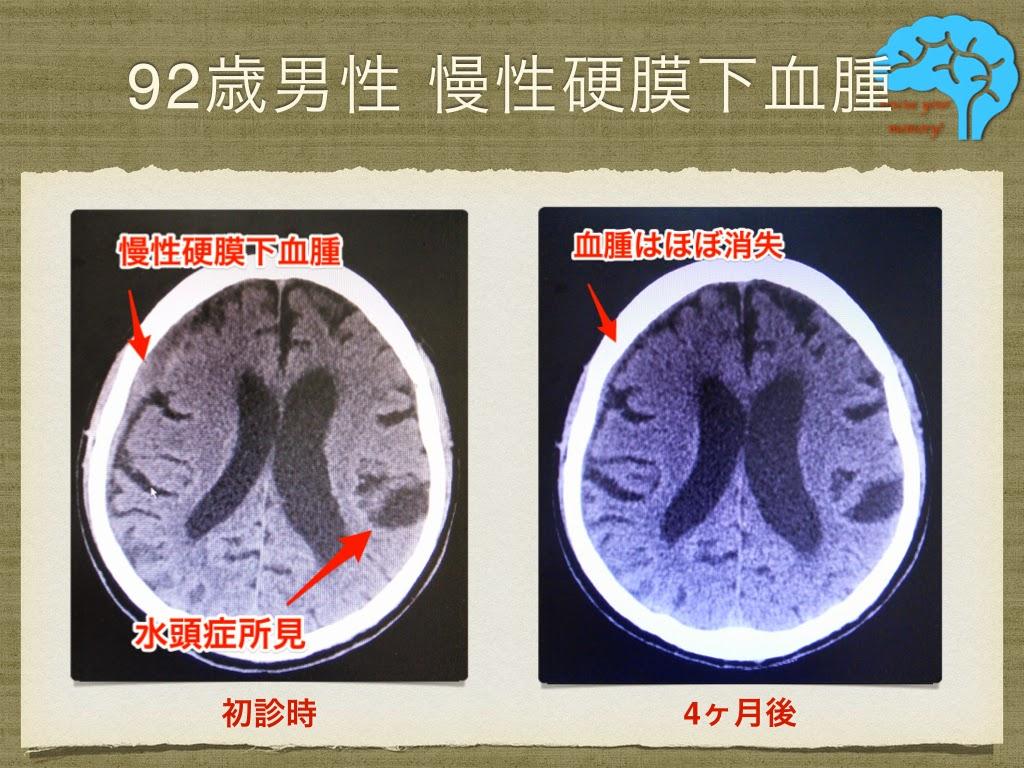 慢性硬膜下血腫のCT