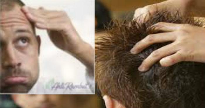 Mengatasi Rambut Kering Secara Alami