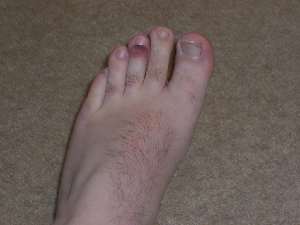 Broken Bone Top Of Foot 27