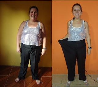 suziane burguez proença obesidade dieta emagrecimento gastroplastia