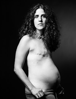 pregnant breast cancer survivor showing scars