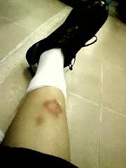 Keep on injured nia==