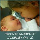 Penny's Clubfoot Journey