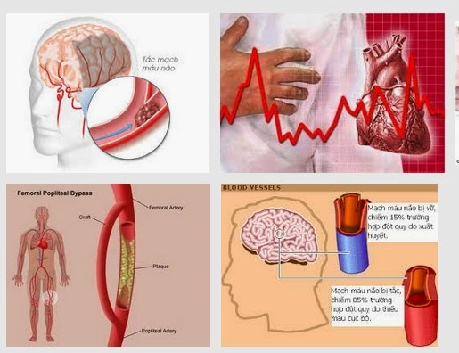 Bệnh mạch máu có thể là do biểu hiện của đau chân