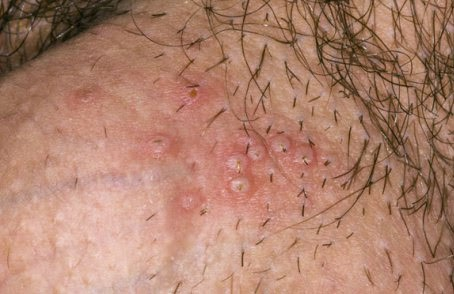 Does Anyone Have Any Info On A Virus Called Herpes Meningitis? Not Caused By Genital Herpes Though? 1