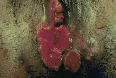 anemia causas e tratamentos