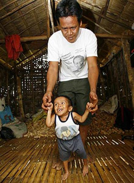 Smallest Man In The World Imagemusti