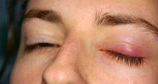 10 Cara Alami Mengatasi Bintitan di Mata