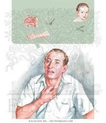 Diagnosis of Bronchial Asthma
