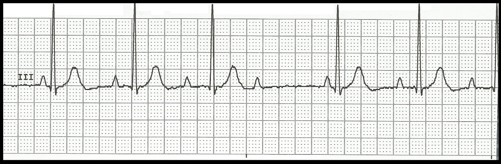 Second degree av block type 1 vs type 2 second degree heart block