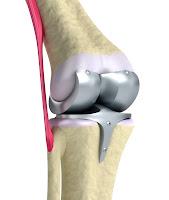 protesis de rodilla de titanio. Salutaris Guadalajara