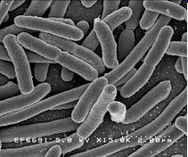 Các tế bào của vi khuẩn Escherichia coli được phóng đại 25.000 lần. Nguồn: Wikipedia