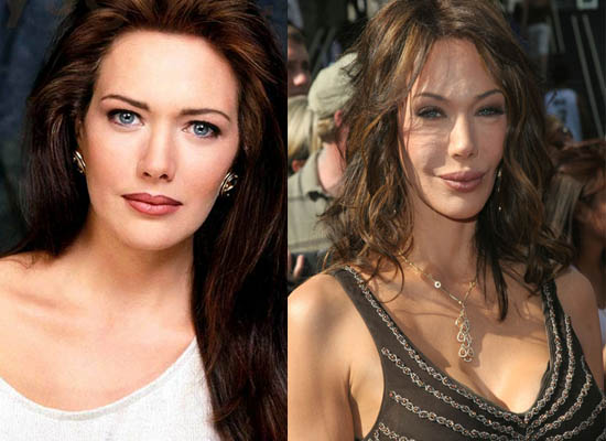 Chatter Busy: Hunter Tylo Surgery