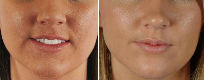rough skin treatment