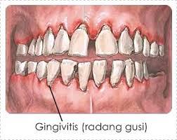 Penyakit Radang Gusi
