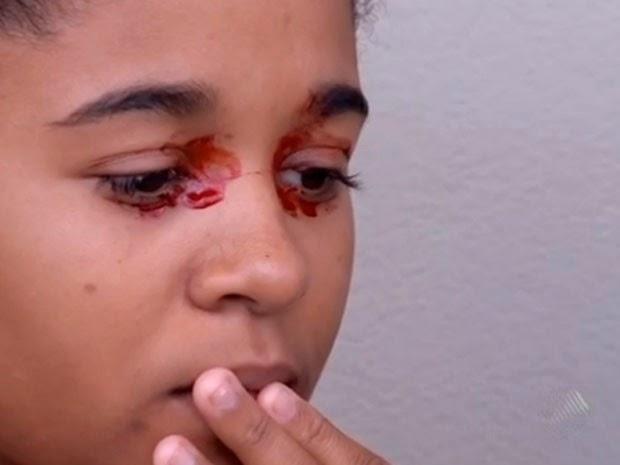 Caso da garota que chora sangue ainda é mistério para a medicina.