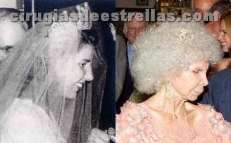 La Duquesa de Alba y su cirugía de nariz