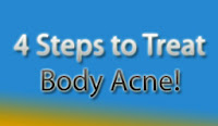 Body Acne Treament tricks