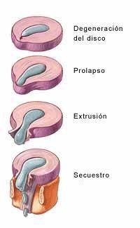 El tratamiento aumentado limfouzlov sobre el cuello el foro