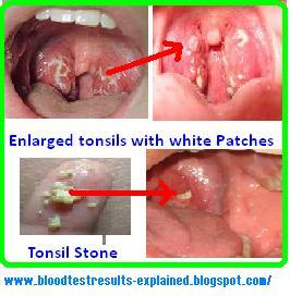 enlarged tonsils with white patches after sore throat or not