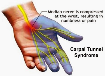 Signs And Symptoms Of Carpal Tunnel Syndrome
