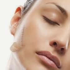 Top 4 cách trị sẹo hiệu quả